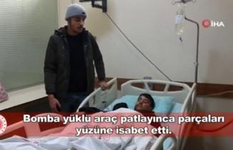 Suriyeli çocuklar bombanın patladığı anı anlattı